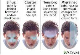 نقاط مختلف سر و صورت در مواجهه با انواع سر درد ها003903