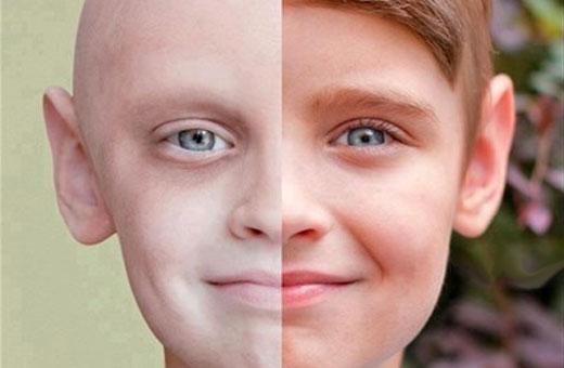 3 راهکار برای پیشگیری از سرطان