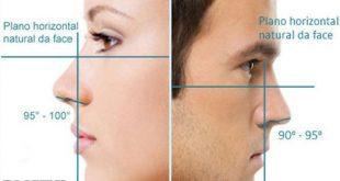 توصیه های جراح بینی