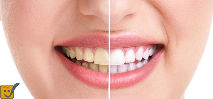 دندانهایی سفید و سالم می خواهید ؟