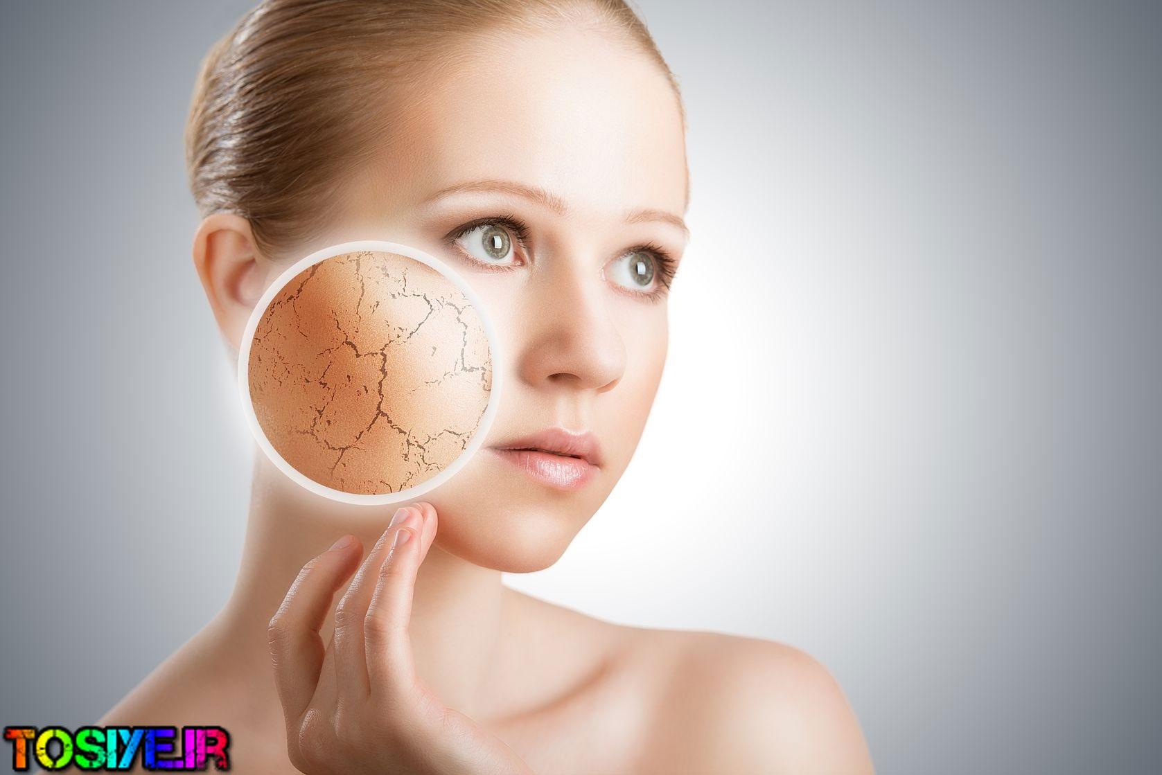 ۹ توصیه برای درمان پوست های خشک