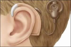 حل مشکل ناشنوایی