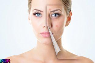 پیشنهاد متخصصان پوست