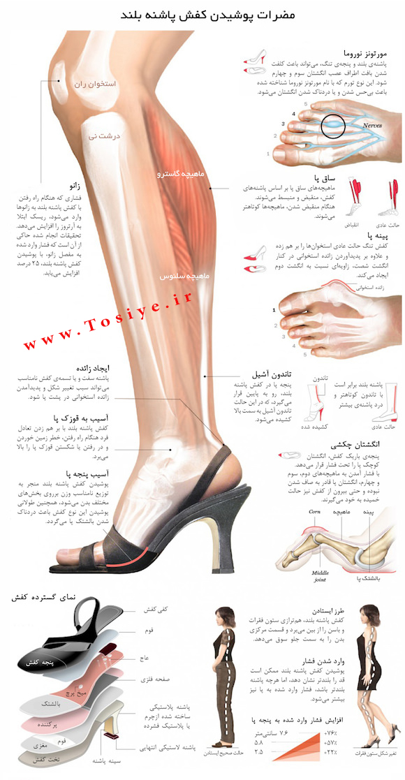 اثرات نامطلوب پوشیدن کفش نامناسب