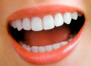 بین دندان هایتان فاصله است؟