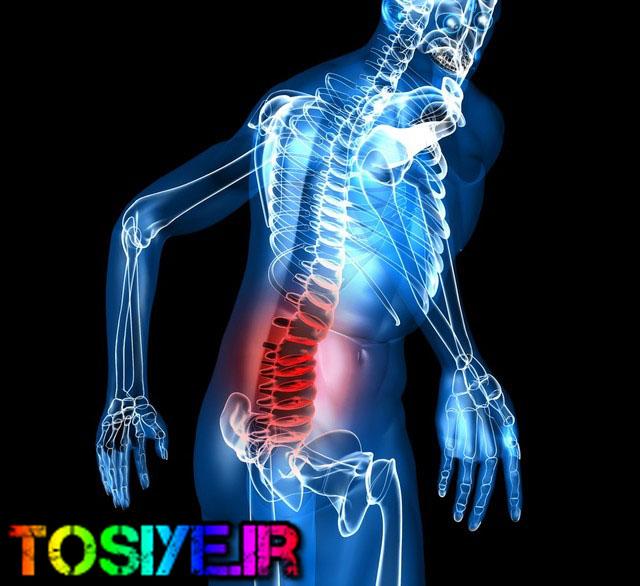 6 عامل ايجادکننده درد در بدن را بشناسيد