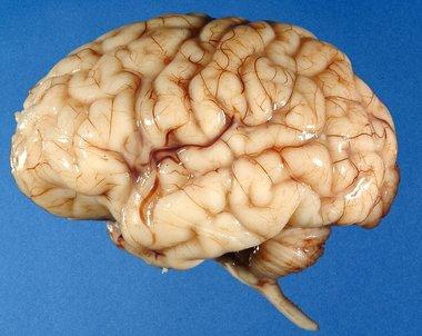 ۸ اشتباه خنده دار درباره مغز