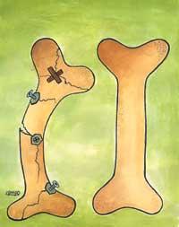 پیشگیری از پوکی استخوان باید از دوران کودکی آغاز شود