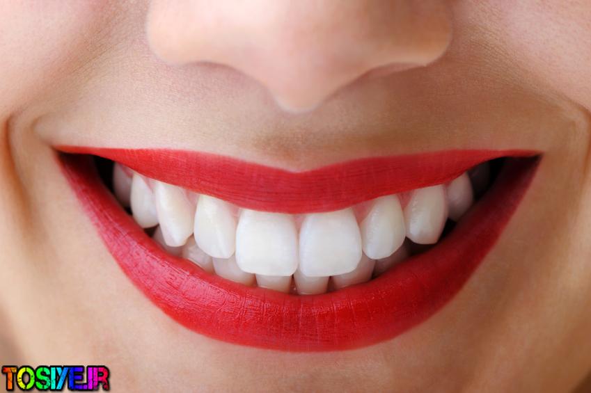 توصیه هایی برای از بین بردن زردی دندان